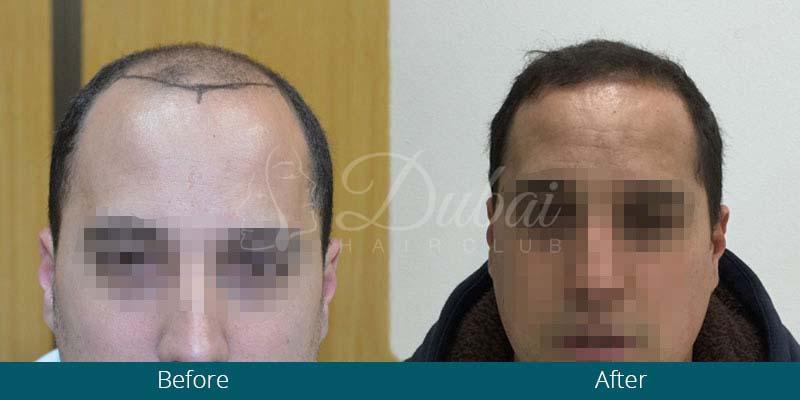 نتائج مذهلة لزراعة الشعر بال أف يو إي