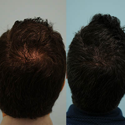 إجراء زراعة الشعر بال أف يو إي