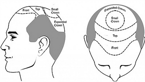 cost of hair transplant