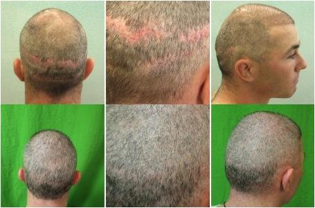 طرق زراعة الشعر والتكاليف