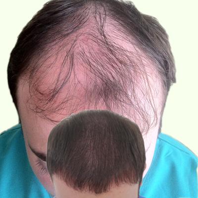hair-transplant-in-dubai